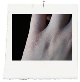 cicatrices copia